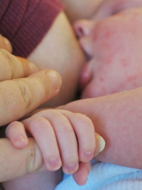 Lactancia materna y asma