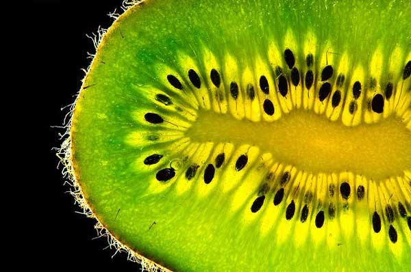 contraindicaciones kiwi